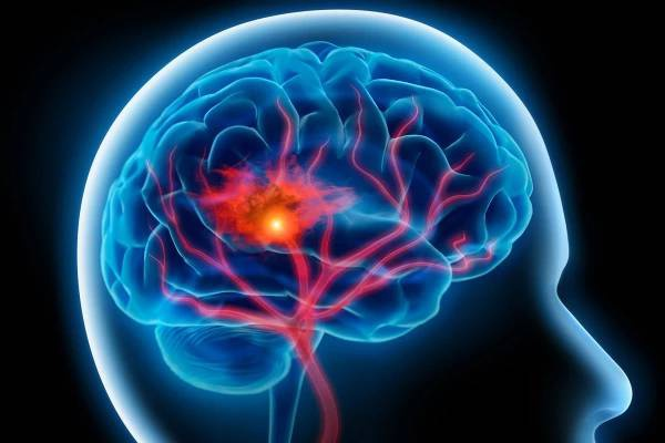 Cévní Mozková Příhoda - znáte příznaky?